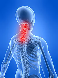 Neck Pain Back Pain Houma LA